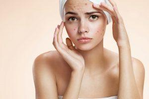 tratamento para acne